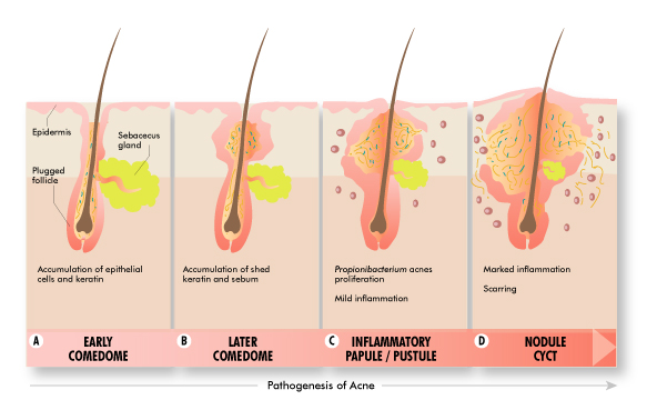 what causes acne and what makes acne worse acne stages