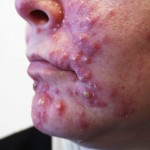 what is acne acne cysts